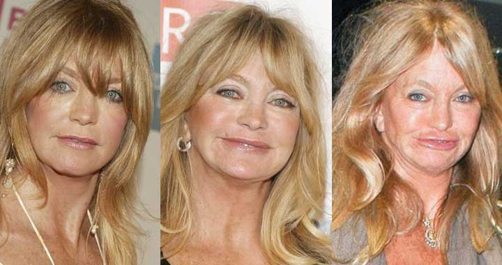 Goldie Hawn Plastic Surgery Before and After 2019