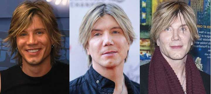 Goo Goo Dolls Lead Singer Plastic Surgery Before and After 2020