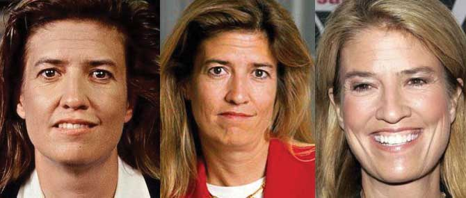 Greta Van Susteren Plastic Surgery Before and After 2021