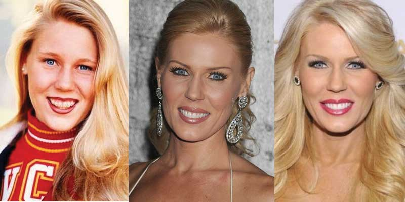Gretchen Rossi Plastic Surgery Before and After 2019