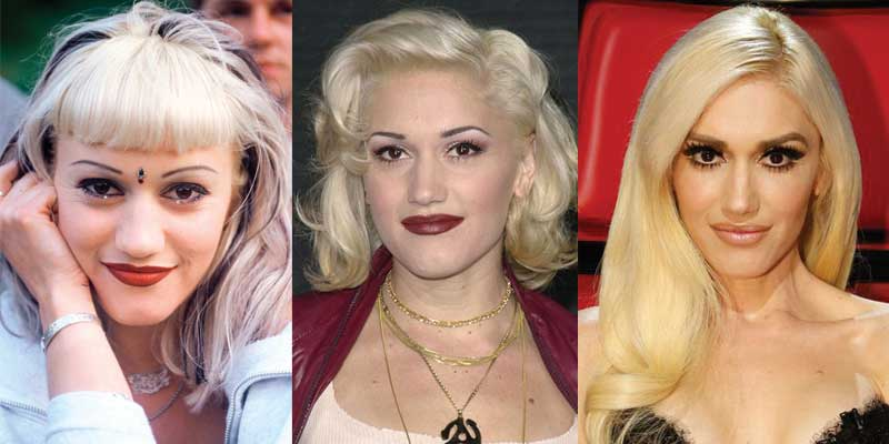 Gwen Stefani Plastic Surgery Before and After 2020