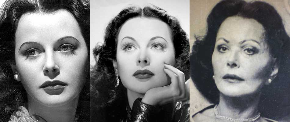 Hedy Lamarr Plastic Surgery Before and After 2019