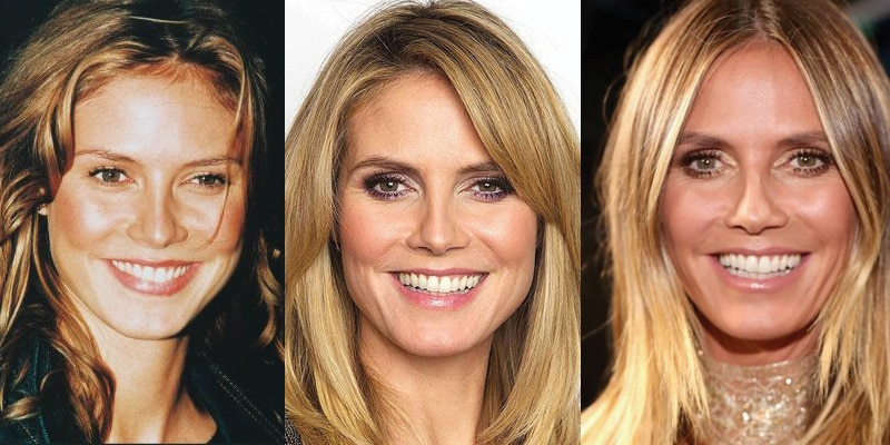 Heidi Klum Plastic Surgery Before and After 2019