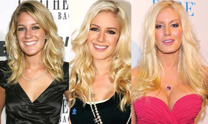 Heidi Montag Plastic Surgery Before and After 2020