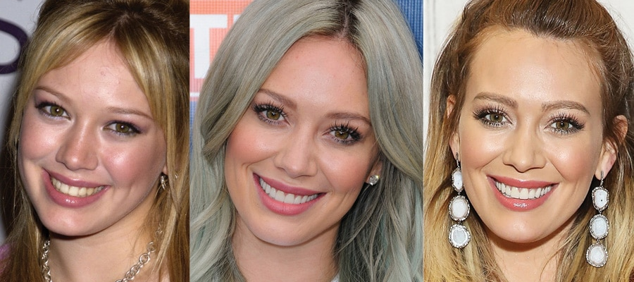 Hillary Duff Plastic Surgery Before and After 2021
