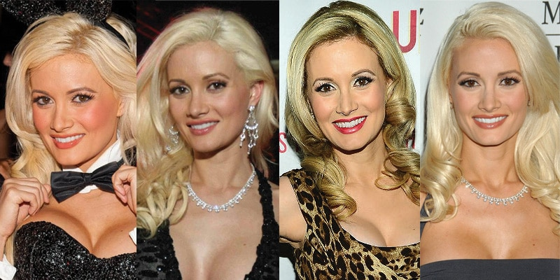 Holly Madison Plastic Surgery Before and After 2019