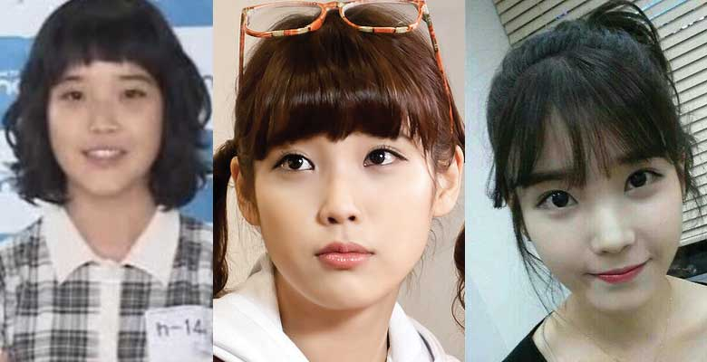 IU Plastic Surgery Before and After 2021