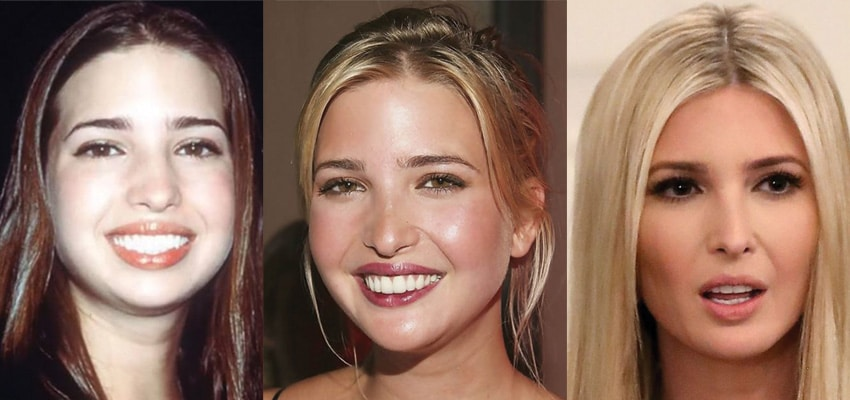 Ivanka Trump Plastic Surgery Before and After 2020