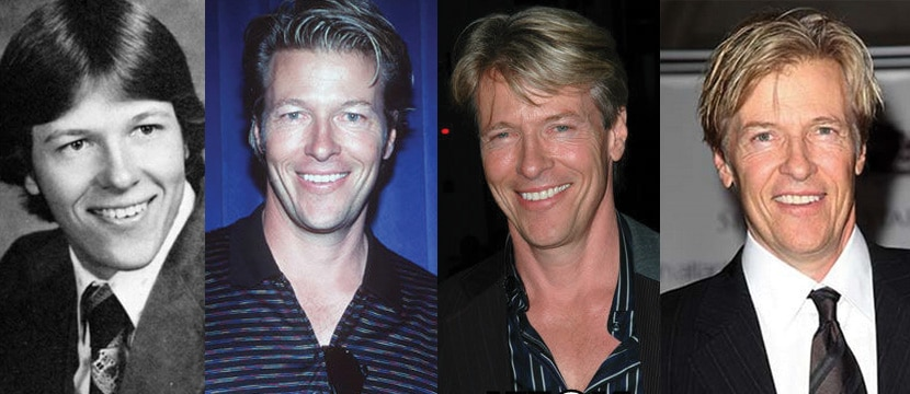 Jack Wagner Plastic Surgery Before and After 2020
