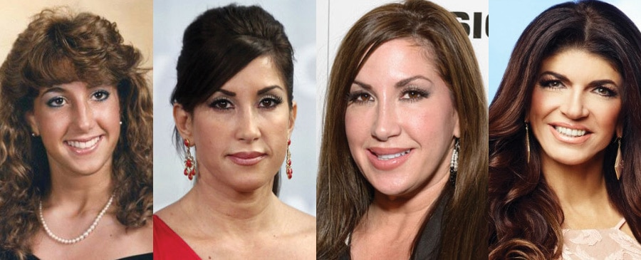 Jacqueline Laurita Plastic Surgery Before and After 2020