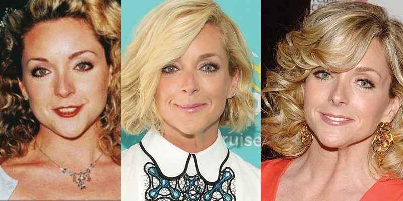 Jane Krakowski Plastic Surgery Before and After 2019