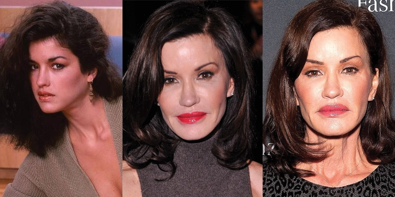 Janice Dickinson Plastic Surgery Before and After 2019