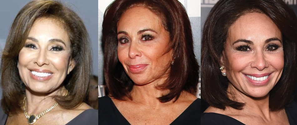 Jeanine Pirro Plastic Surgery Before and After 2020