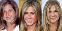 Jennifer Aniston Plastic Surgery
