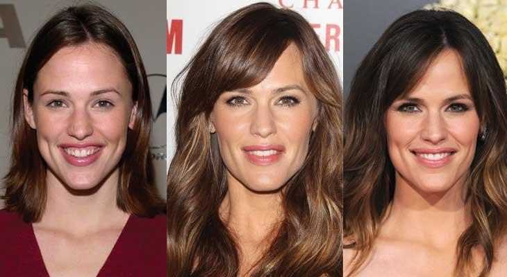 Jennifer Garner Plastic Surgery Before and After 2019