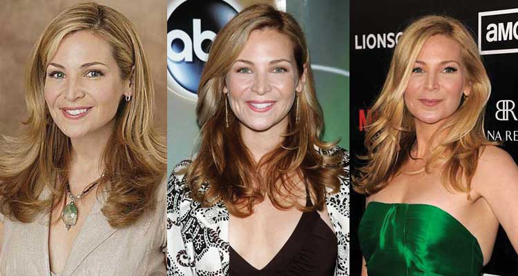 Jennifer Westfeldt Plastic Surgery Before and After 2021