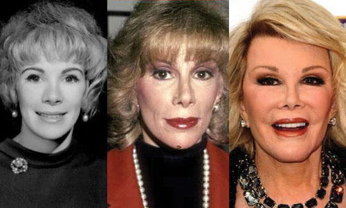 Joan Rivers Plastic Surgery Before and After 2021