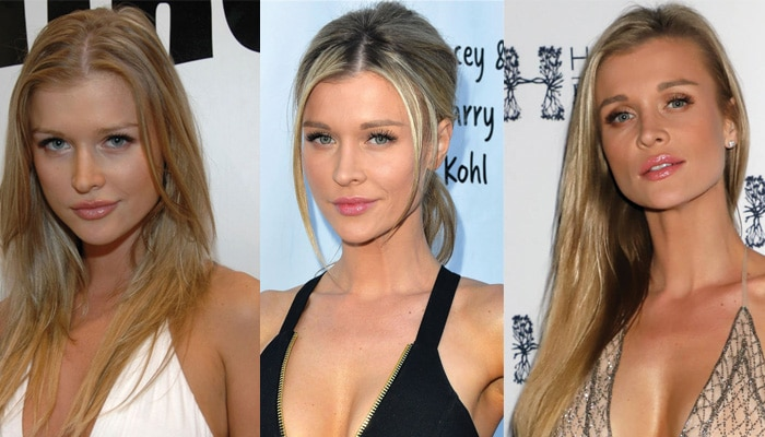 Joanna Krupa Plastic Surgery Before and After 2020
