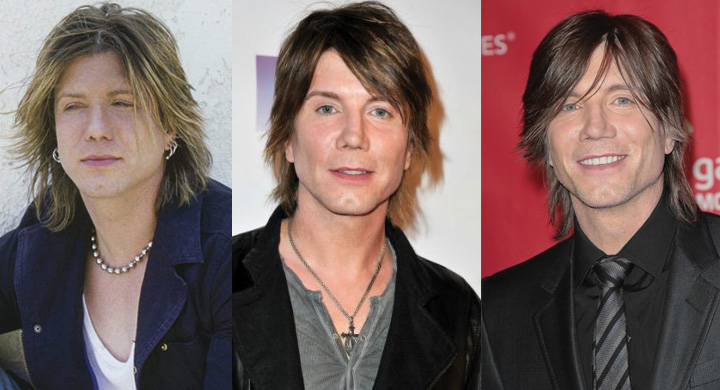 Johnny Rzeznik Plastic Surgery