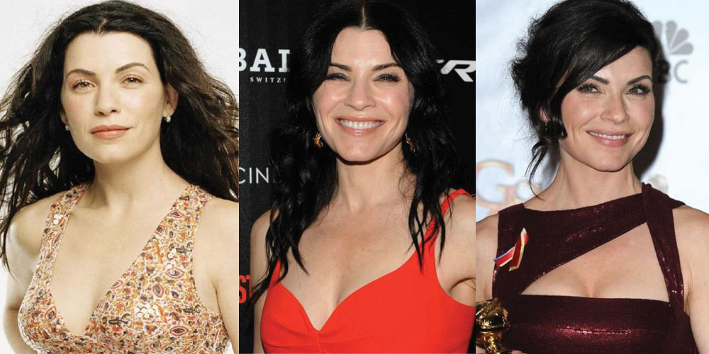 Julianna Margulies Plastic Surgery Before and After 2020