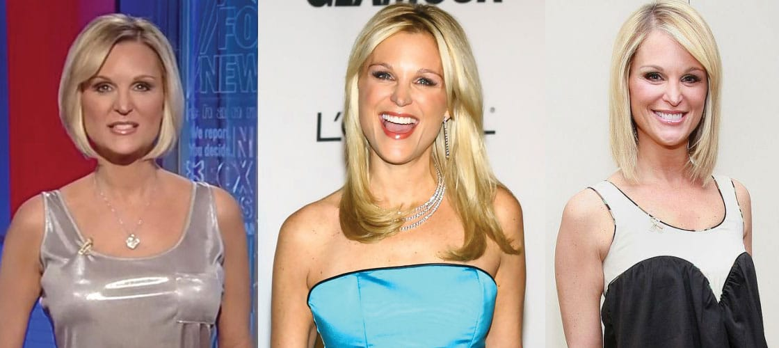 Juliet Huddy Plastic Surgery Before and After 2021