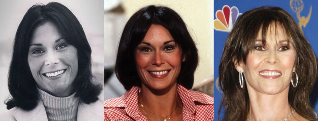 Kate Jackson Plastic Surgery Before and After 2021