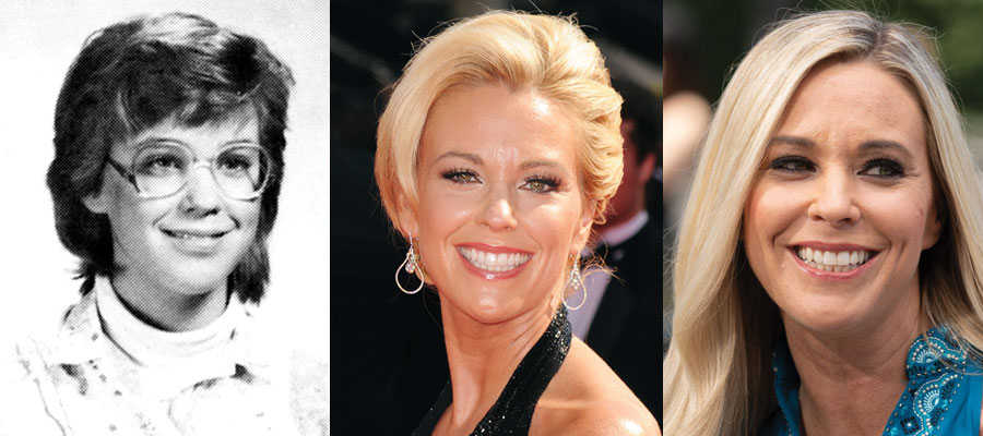 Kate Gosselin Plastic Surgery Before and After 2021