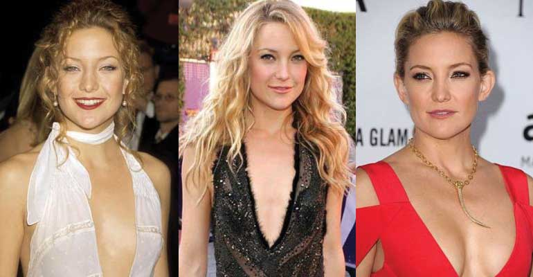 Kate Hudson Plastic Surgery Before and After 2020