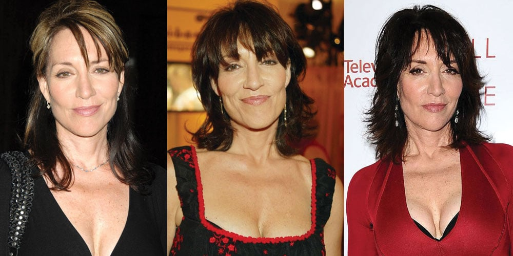 Kate Sagal Plastic Surgery Before and After 2021