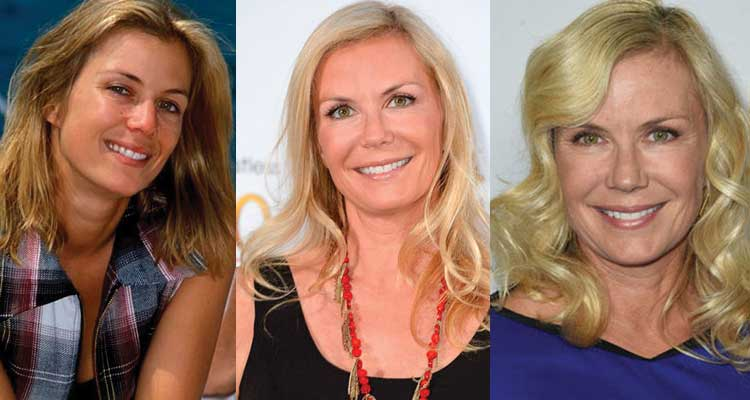 Katherine Kelly Lang Plastic Surgery Before and After 2020