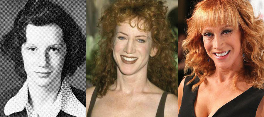 Kathy Griffin Plastic Surgery Before and After 2021
