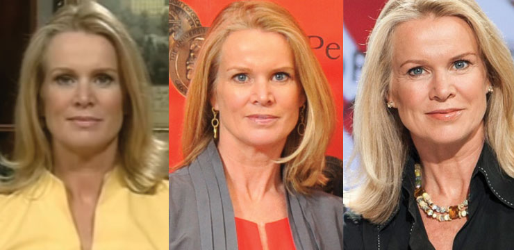 Katty Kay Plastic Surgery Before and After 2020