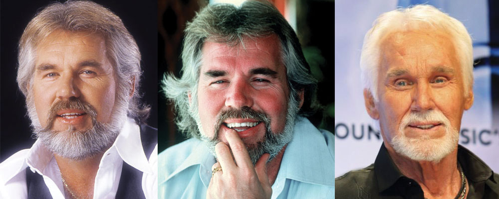 Kenny Rogers Plastic Surgery Before and After 2020