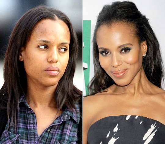 Kerry Washington Plastic Surgery Before and After 2019