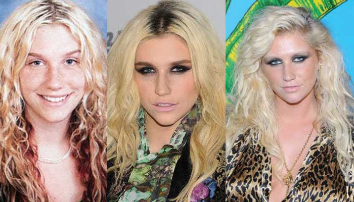 Kesha Plastic Surgery Before and After 2021