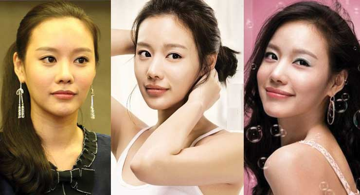 Kim Ah Joong Plastic Surgery Before and After 2020