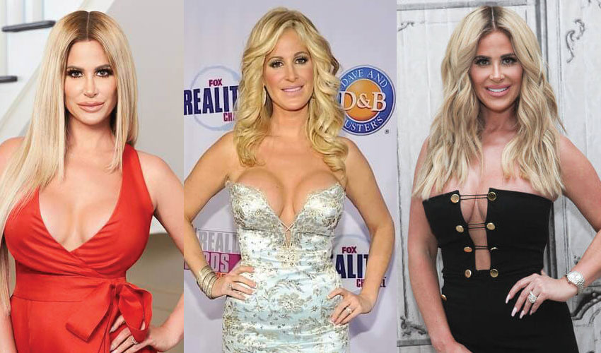 Kim Zolciak Plastic Surgery Before and After 2020