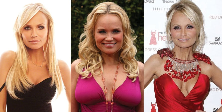 Kristin Chenoweth Plastic Surgery Before and After 2021