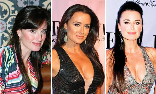Kyle Richards Plastic Surgery Before and After 2021