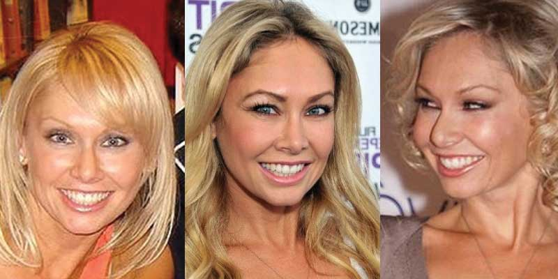 Kym Johnson Plastic Surgery