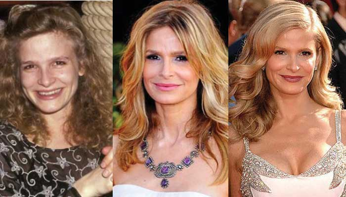 Kyra Sedgwick Plastic Surgery Before and After 2019