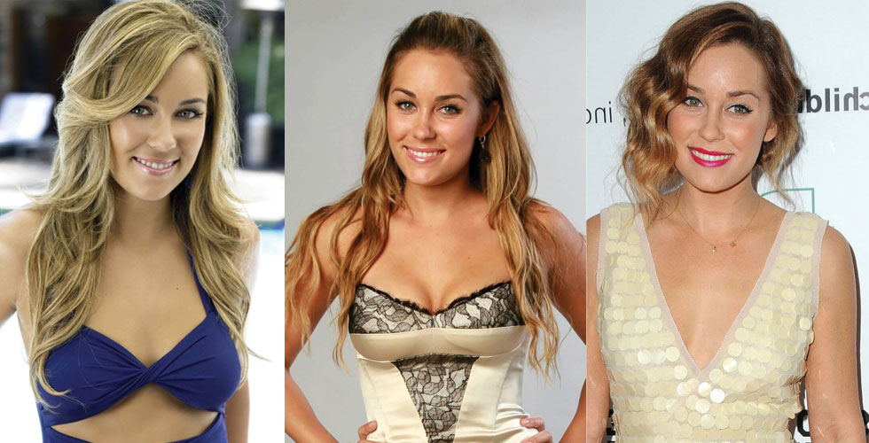 Lauren Conrad Plastic Surgery Before and After 2020