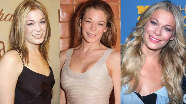LeAnn Rimes Plastic Surgery Before and After 2020