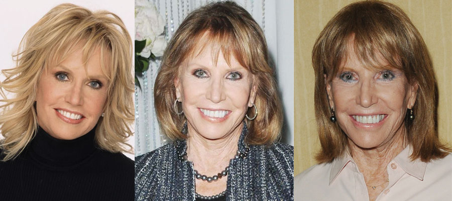 Leslie Charleson Plastic Surgery Before and After 2020
