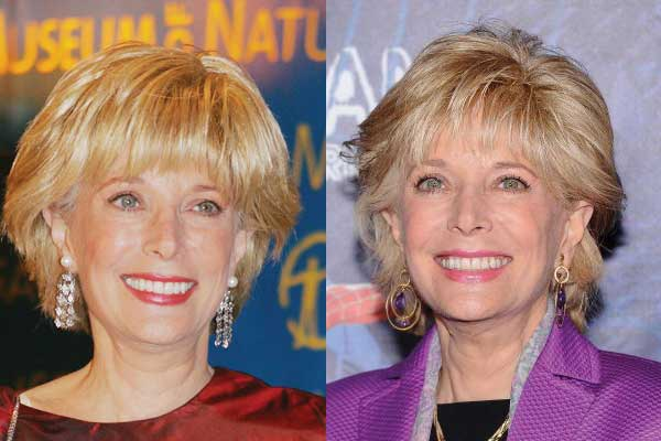 Leslie Stahl Plastic Surgery Before and After 2019