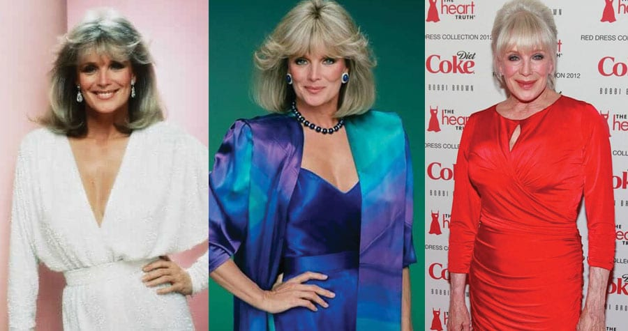 Linda Evans Plastic Surgery Before and After 2020