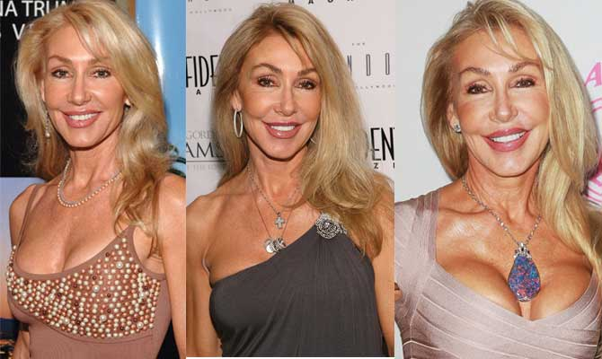 Linda Thompson Plastic Surgery Before and After 2019