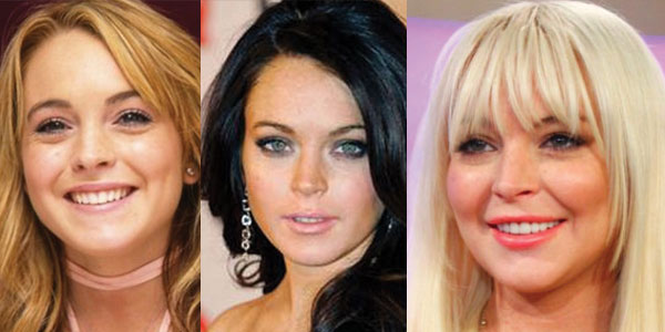 Lindsay Lohan Plastic Surgery Before and After 2020