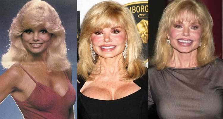 Loni Anderson Plastic Surgery Before and After 2021