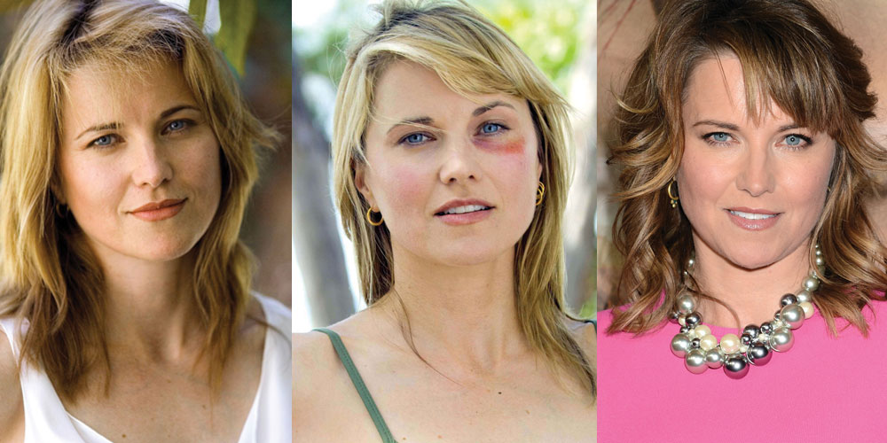 Lucy Lawless Plastic Surgery Before and After 2021